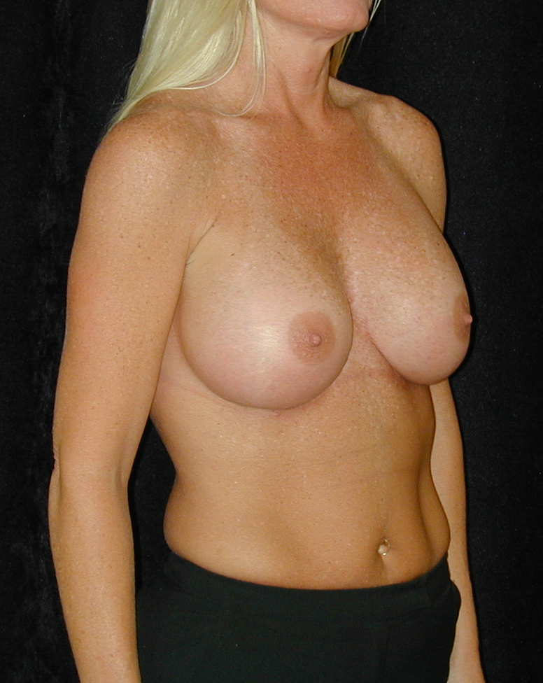 Angeles breast implant surgery